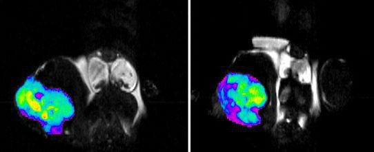 University of Colorado Cancer Center awarded $2 million for new imaging machine
